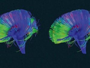 """Il Tuo Cervello ha un Pulsante """"Elimina"""" – Ecco Come Usarlo"""
